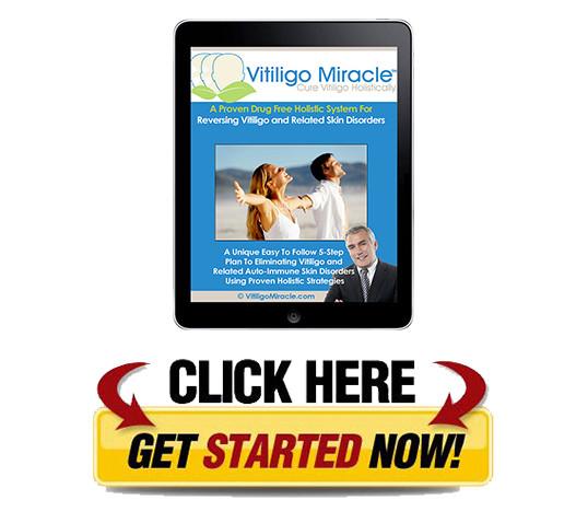Download Vitiligo Miracle PDF